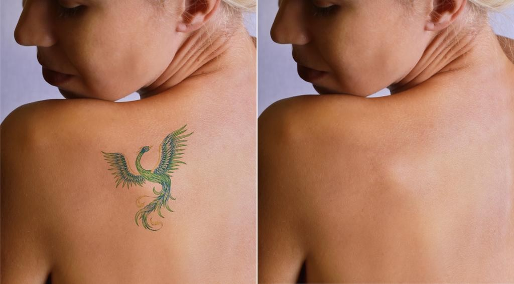 Best Cover Up Tattoo Ideas